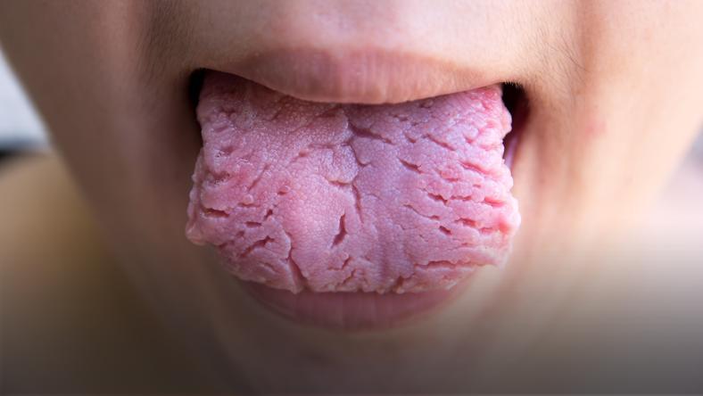 理由 白い 舌 が